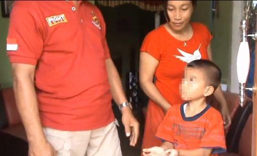 Kejam!! Bocah di Poso Dihukum Pegang Garam Panas oleh Ayah Angkatnya